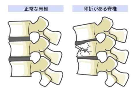 脊椎圧迫骨折